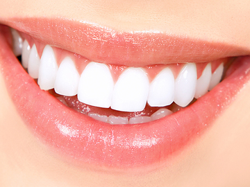 Ofreciendo Servicios: Teeth Whitening (3 Sessions)