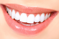 Offering Services: Teeth Whitening (3 Sessions)