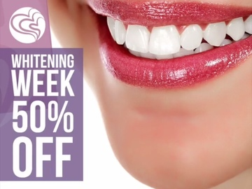 Offering Services: Weston Teeth Whitening Service at 50% Off (3 Sessions)
