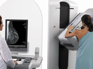 Services (Per event pricing): Mobile Mammograms