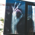 Price Upon Request: Bone Density Screenings