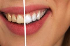 Schulung / Kurs: Schulung für die kosmetische Zahnaufhellung
