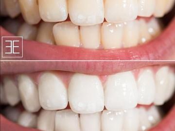 Schulung / Kurs: Kosmetische  Zahnaufhellung inkl. großem Starterset