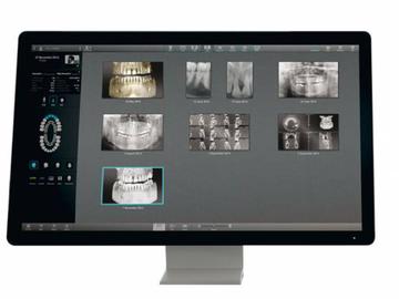 Nieuwe apparatuur: Acteon rontgen apparatuur bij Utrecht Dental