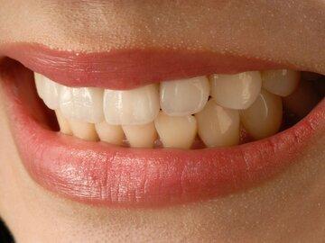 Information: Was Sie über Zahnveneers wissen sollten / Dental veneer