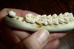 Information: Warum bekommen Zähne Karies?