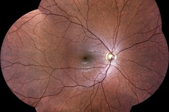 Selling with online payment: EIDON widefield TrueColor confocal fundus imaging system